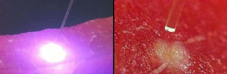 laser diodes in dentistry