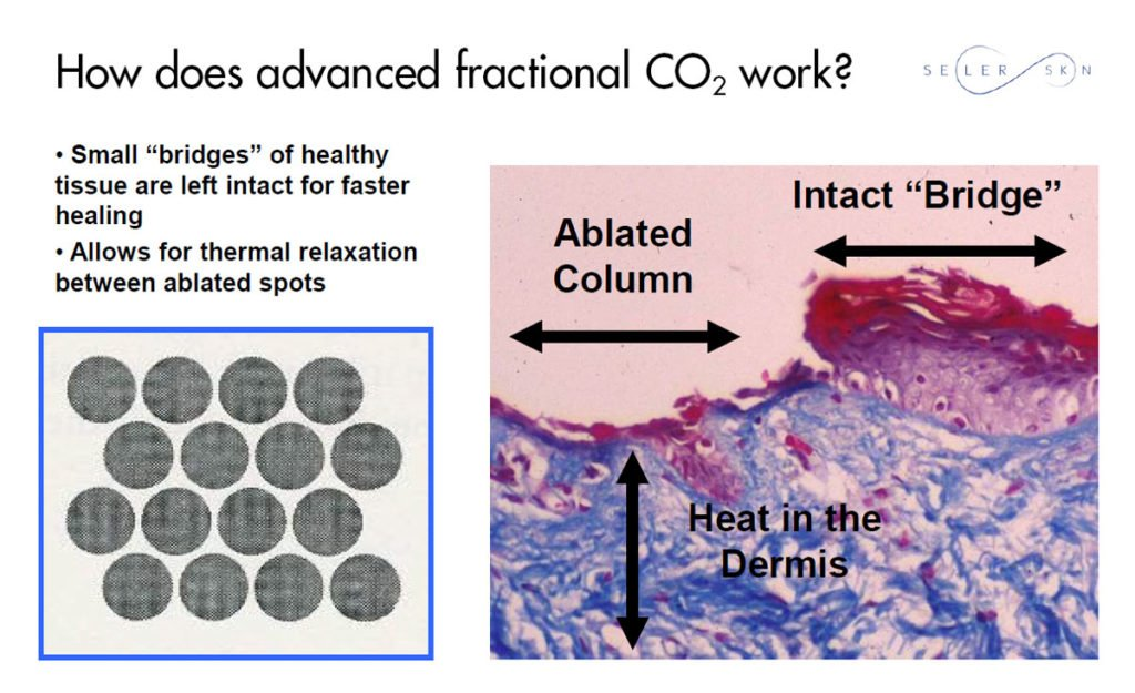 how fractional co2 lasers work