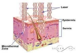 laser thermal injury
