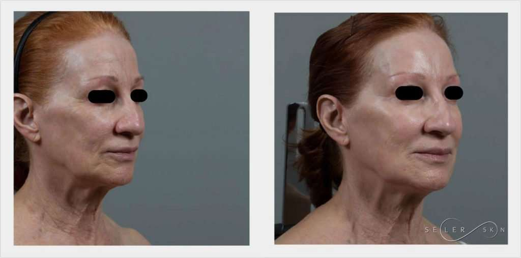 Laser Cosmetic Surgery - How Lasers are Used in Cosmetic Medicine
