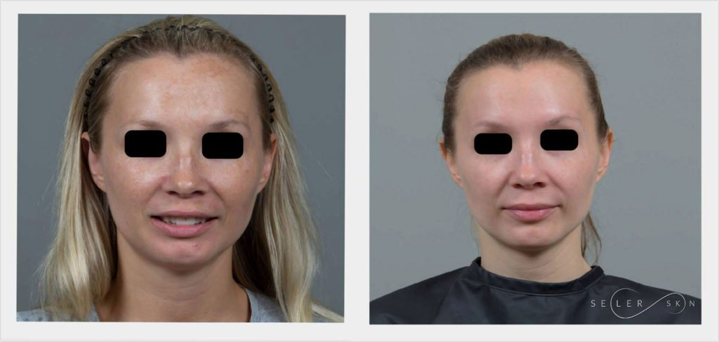 Laser Cosmetic Surgery - How Lasers are Used in Cosmetic