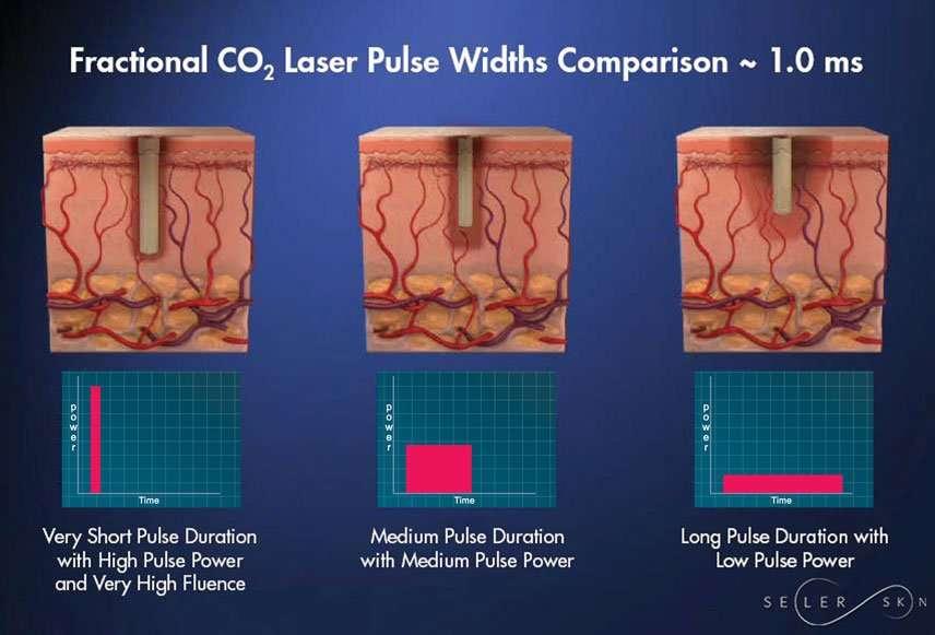 Fractional CO2 laser pulse widths